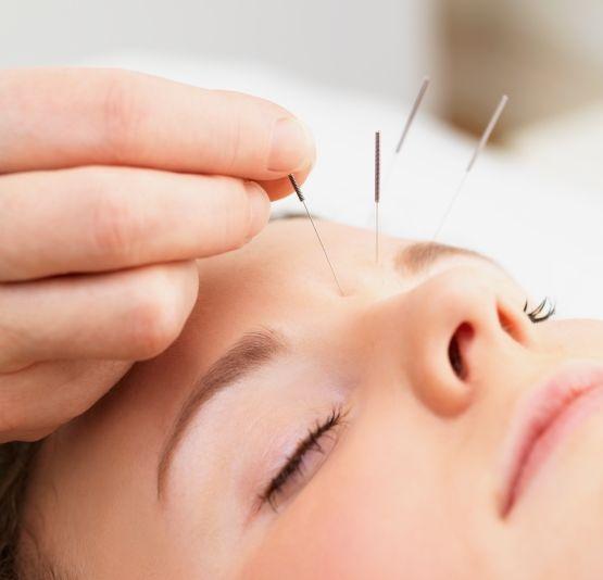 Agopuntura e cefalea
